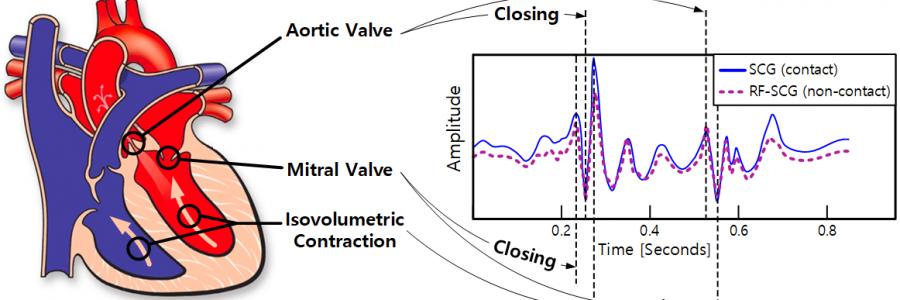 Contactless Seismocardiography via Deep Learning Radars
